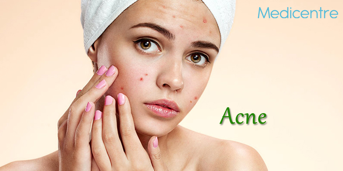 Allergy and allergy testing treatment in gurgaon